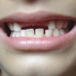 Вредни навици у  децата, свързани с оформянето на зъбно-челюстния апарат